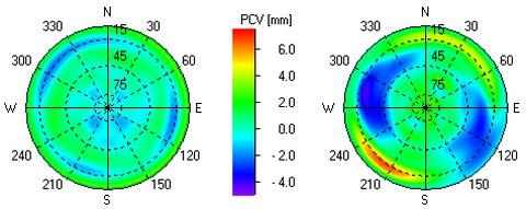 PCV-Graphik