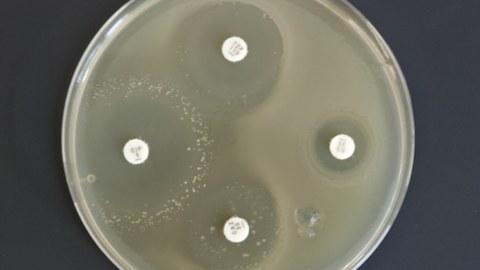 Antibioticaresistenz