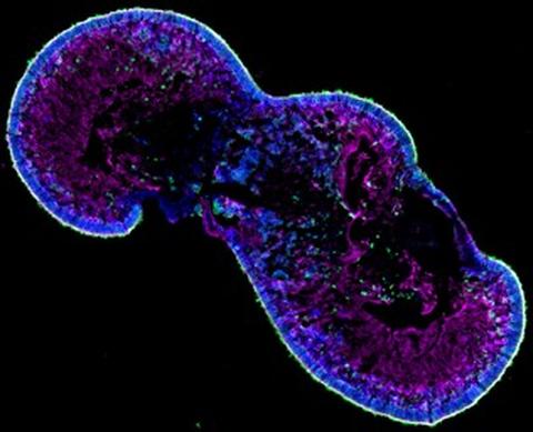 RPE Cells