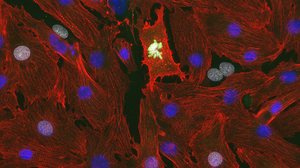 Cell Cycle Activity in Neonatal Cardiomyocytes
