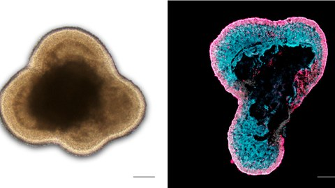 Left: Brightfield microscopy image of a living human retinal organoid in cell culture; Right: Immunostained image of a human retinal organoid section labeled for photoreceptors (RCVRN, magenta) and Müller glia (RLBP1, cyan)