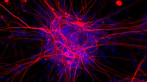 iPS Cells and Neurodegenerative Disease
