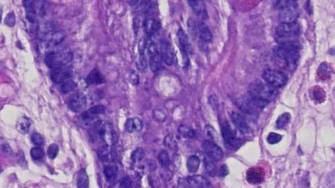Mucosal Immunology