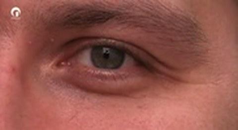 Hilfe für das Auge