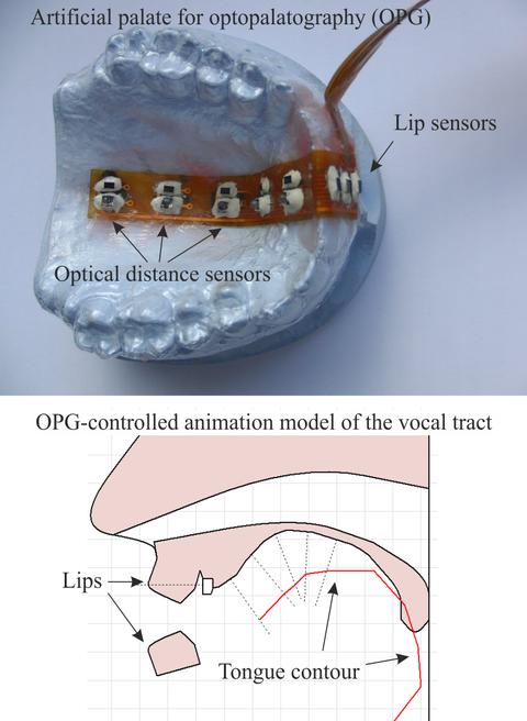 Grafik mit OPG-Überblick