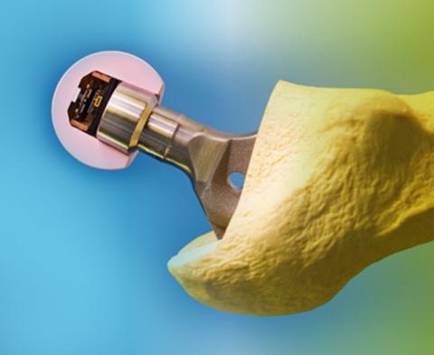 t3_Implantat