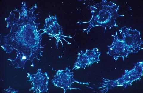 Krebszellen - Mikroskopaufnahme