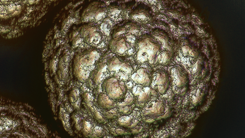 Microscopic image of a nickel particle