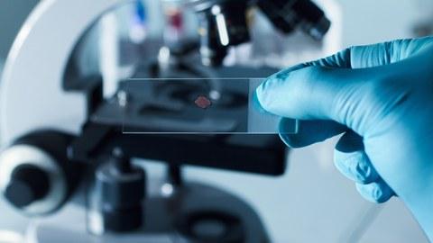 Objektträger mit Probe und Mikroskop
