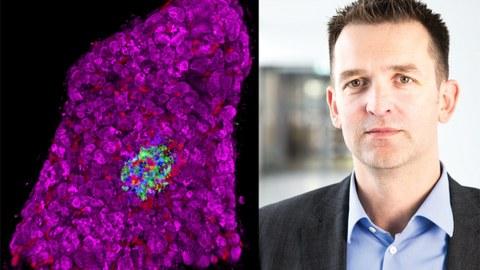 Links: 3D-Morphometrie einer pankreatischen Insel innerhalb eines humanen Gewebeschnittes. Rechts: Prof. Stephan Speier
