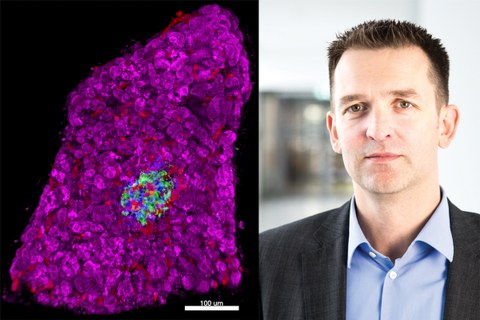 Left: 3D morphometry of an islet within a human pancreas tissue slice. Right: Prof. Stephan Speier