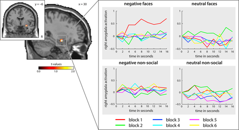 Amygdala activation for emotional stimuli