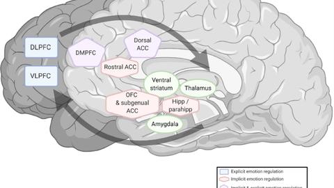 Abbildung von Hirnarealen aktiviert während Emotionsregulierung