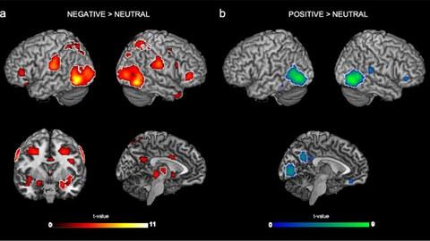 Depiction of cerebral activity