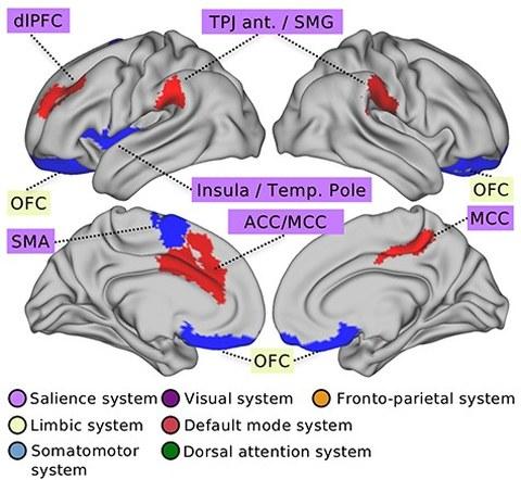 Brain activity regarding social support