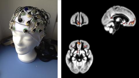 EEG Kappe und Bilder des Gehirns, durch mit der Methode der funktionellen magnetischen resonanstomograpie gemacht wurden