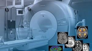 Neuro Imaging Center