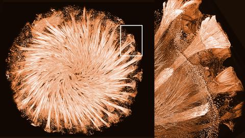 Mikroskopische Aufnahme eines runden Schwammes, links als Gesamtheit ein Ausschnitt ist mit einem weißen Quadrat markiert, rechts ist der vergrößerte Ausschnitt zu sehen.