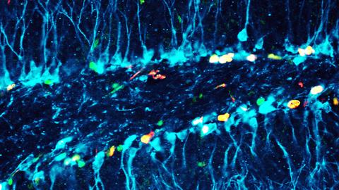 Mikroskopische Aufnahme von Neuronen in Blautönen