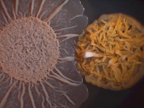 Rechts eine runde, sehr strukturierte Zellkultur in dunklem Orange, rechts sonnenförmig in altrosa. Der Hintergrund ist schwarz