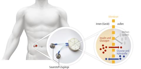 Wirkungsweise des Bioreaktors