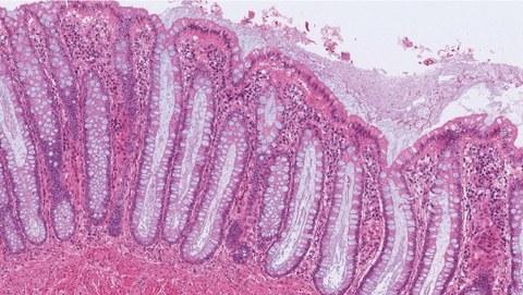 Tumorerkennung