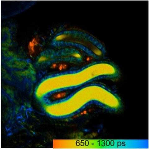 Falschfarbenbild der Fluoreszenz-Lebenszeit des Stoffwechselmoleküls NADH eines Spermienhaufens (hier gelb) in einem weiblichen Spermienspeicherorgan in der Taufliege.