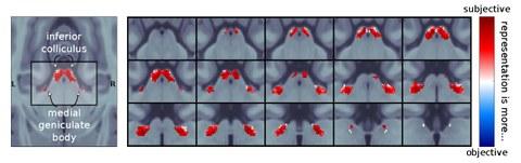 Blick auf die Auswertung eines MRT des Gehirns