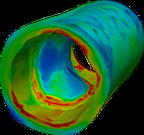 Simulation Arterie
