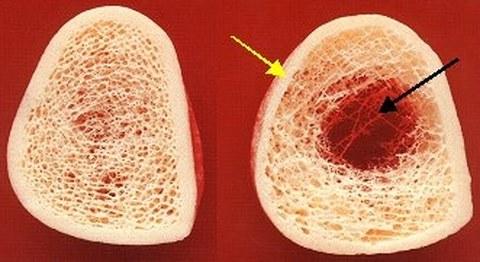 Hartgeweberegeneration